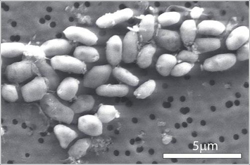Imagen de microscopio electrónico de barrido de la GFAJ-1 - Science / AAAS