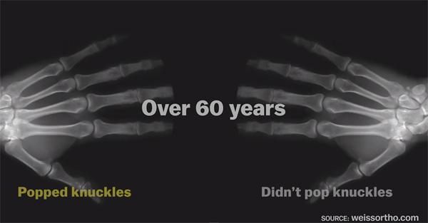 Crujir los nudillos durante 60 años - Vox