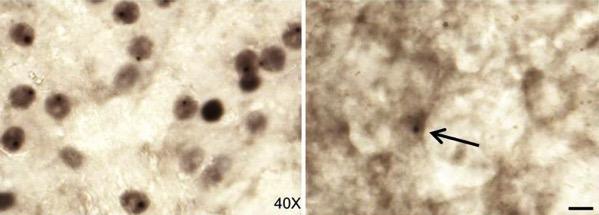 Acumulaciones de proteínas entes y después
