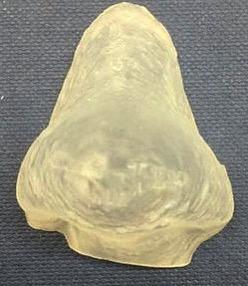 Parche 3D con ácido salicílico