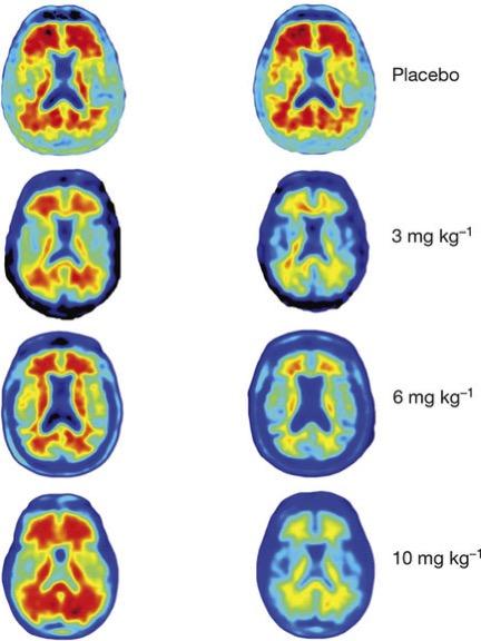 Evolución de beta amiloide en enfermos tratados con Aducanumab